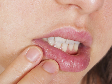 A woman suffering from cold sore
