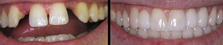 Replace Missing or Damaged Teeth with Dental Bridges