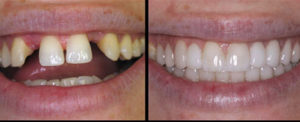 before and after photos of dental bridge using cosmetic dentistry